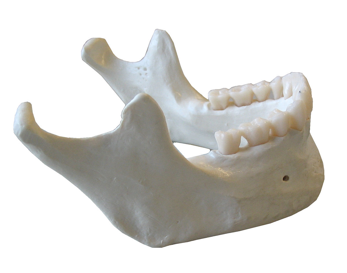 dental implants jaw bones