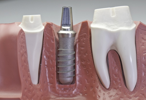 dental implants synthetic teeth
